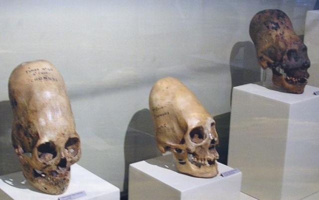 TESTES DE DNA REALIZADOS EM CRÂNIOS DE PARACAS