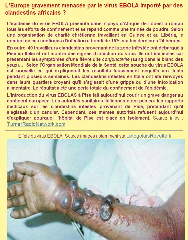 ebola-francia