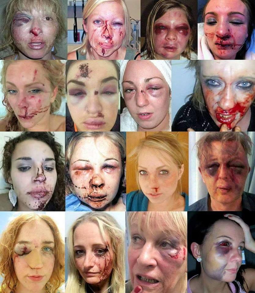 d978fc6c4f 16 donne tedesche(?) picchiate da immigrati(?) — BUTAC - Bufale un tanto al  chilo